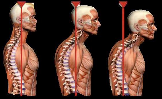 Neck Syndrome