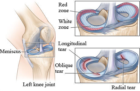 MENISCUS KNEE TEAR
